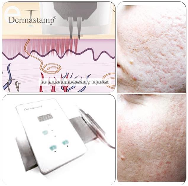 eDermastamp™ Skin Rejuvenation